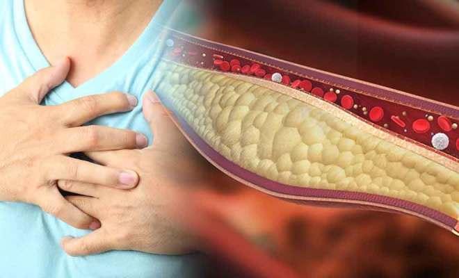 persona con ataque al corazón por el colesterol alto