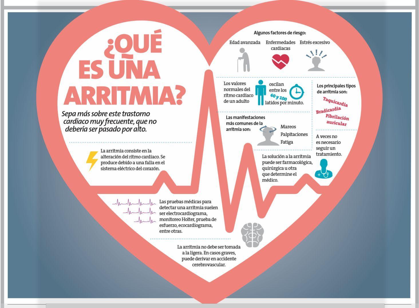 infografía de las arritmias